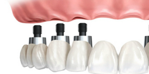 dental implants in Sale