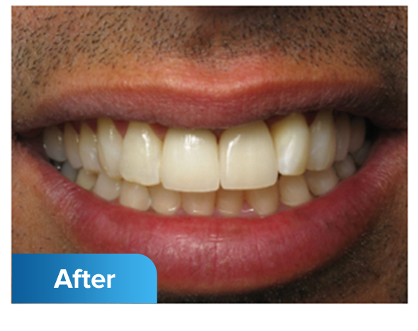 After dental implants photo