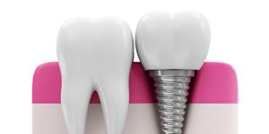 teeth implants in Altrincham