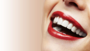 Six month smiles treatment-smiling