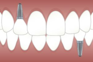 multiple teeth implants in Cheshire