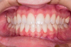 dental implants patient alderley edge