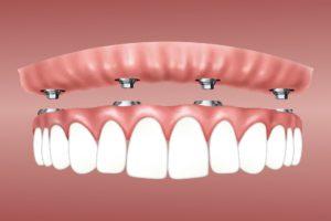 overdenture dental implants in denton